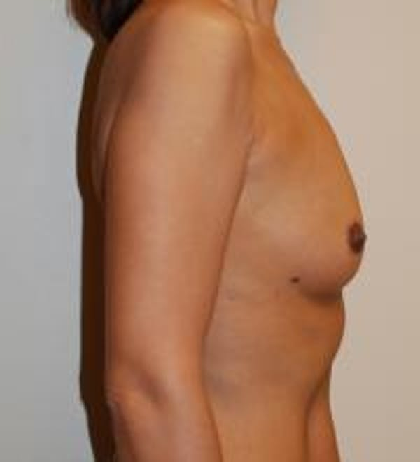 Breast Augmentation Gallery - Patient 22391248 - Image 3
