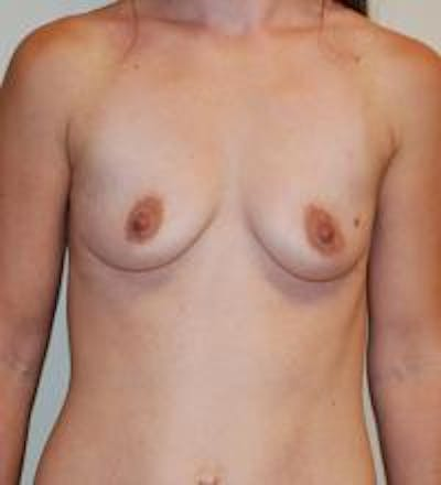 Breast Augmentation Gallery - Patient 22391249 - Image 1