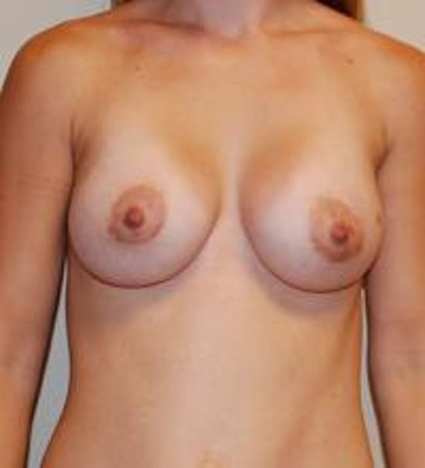 Breast Augmentation Gallery - Patient 22391249 - Image 2