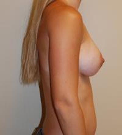 Breast Augmentation Gallery - Patient 22391249 - Image 4