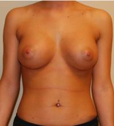 Breast Augmentation Gallery - Patient 22391250 - Image 2