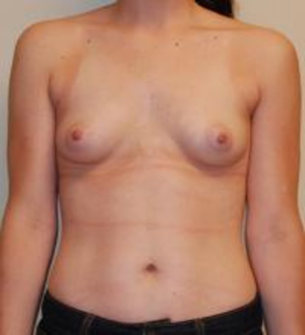 Breast Augmentation Gallery - Patient 22391250 - Image 1