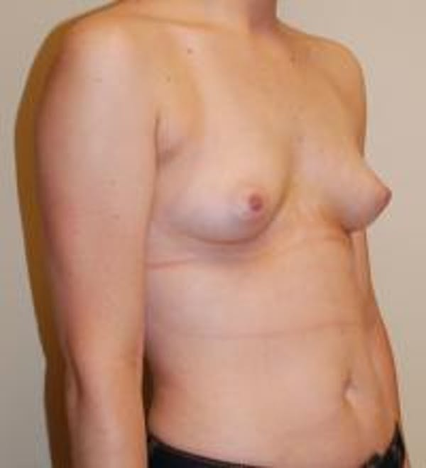 Breast Augmentation Gallery - Patient 22391250 - Image 3