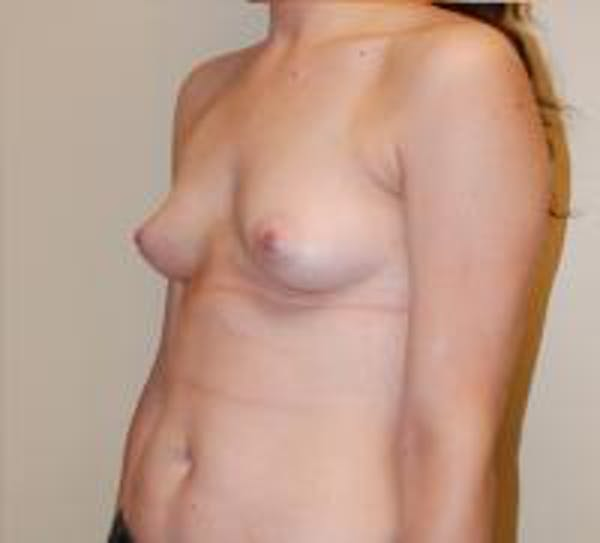 Breast Augmentation Gallery - Patient 22391250 - Image 5