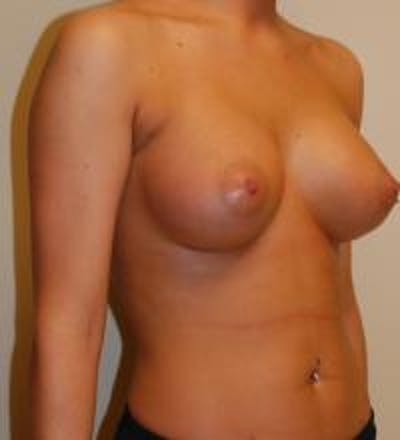 Breast Augmentation Gallery - Patient 22391250 - Image 4