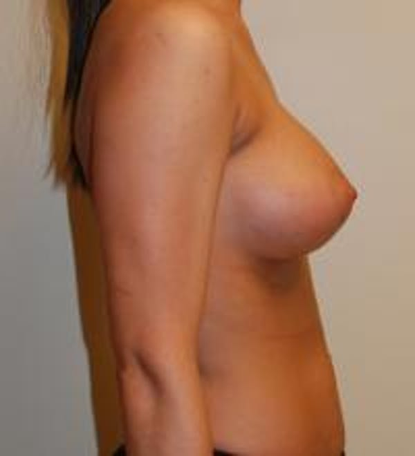 Breast Augmentation Gallery - Patient 22391250 - Image 8