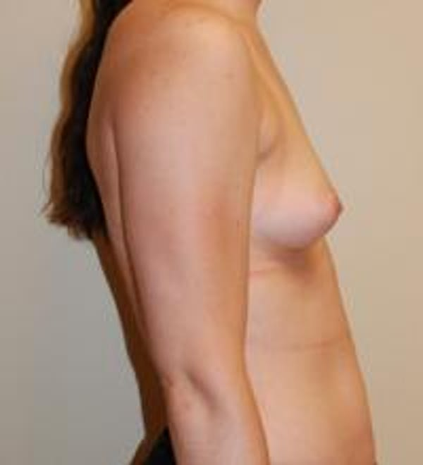Breast Augmentation Gallery - Patient 22391250 - Image 7