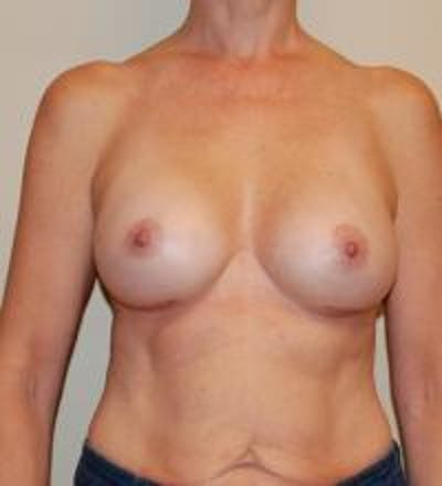 Breast Augmentation Gallery - Patient 22391251 - Image 2