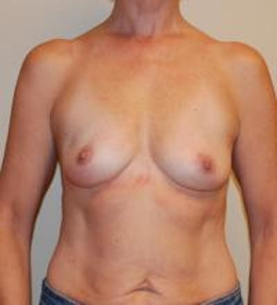 Breast Augmentation Gallery - Patient 22391251 - Image 1