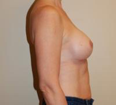 Breast Augmentation Gallery - Patient 22391251 - Image 4