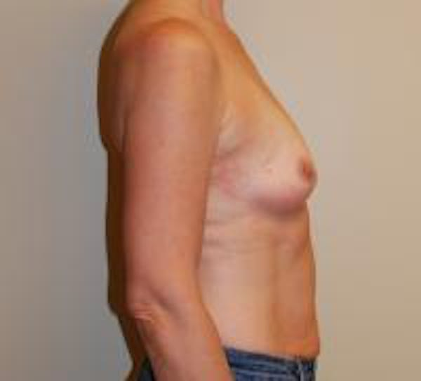 Breast Augmentation Gallery - Patient 22391251 - Image 3