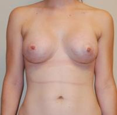 Breast Augmentation Gallery - Patient 22391252 - Image 2