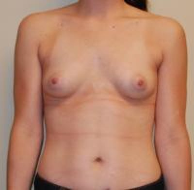 Breast Augmentation Gallery - Patient 22391252 - Image 1