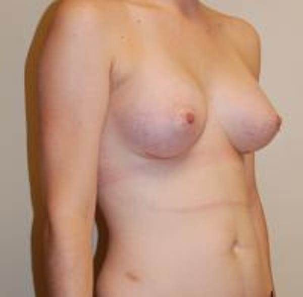 Breast Augmentation Gallery - Patient 22391252 - Image 4