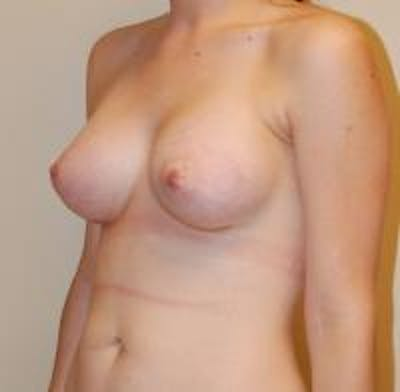 Breast Augmentation Gallery - Patient 22391252 - Image 6