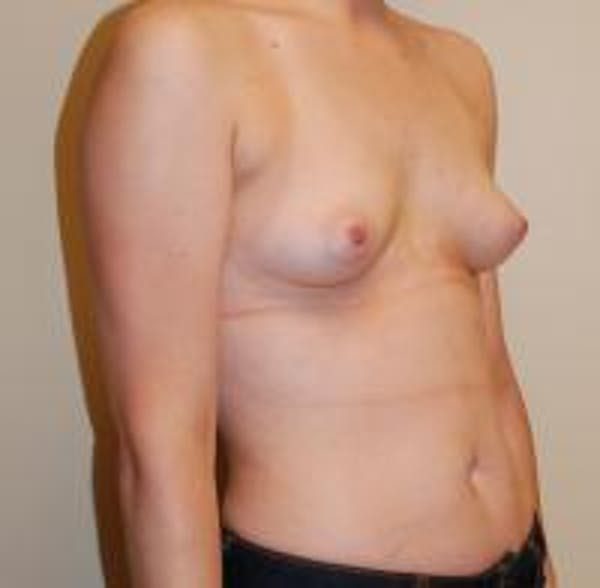 Breast Augmentation Gallery - Patient 22391252 - Image 3