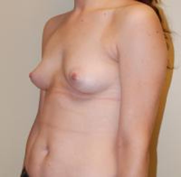 Breast Augmentation Gallery - Patient 22391252 - Image 5