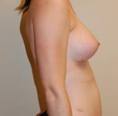 Breast Augmentation Gallery - Patient 22391252 - Image 8
