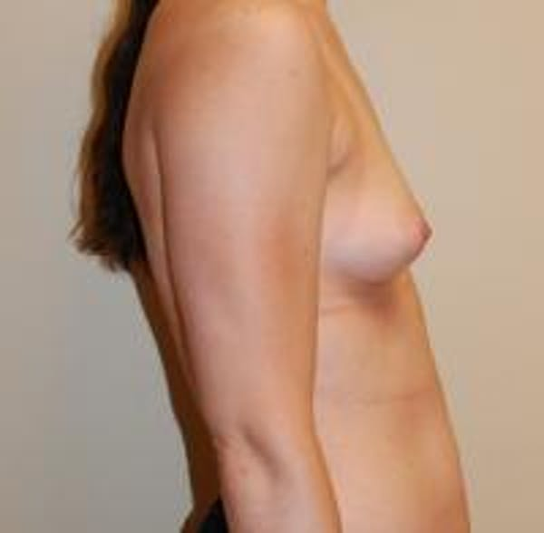 Breast Augmentation Gallery - Patient 22391252 - Image 7