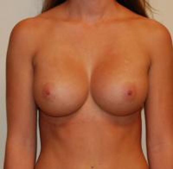 Breast Augmentation Gallery - Patient 22391253 - Image 2