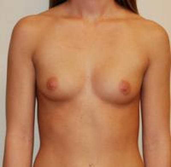 Breast Augmentation Gallery - Patient 22391253 - Image 1