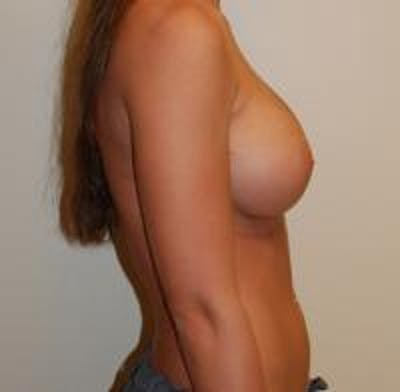 Breast Augmentation Gallery - Patient 22391253 - Image 4