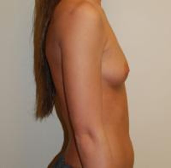 Breast Augmentation Gallery - Patient 22391253 - Image 3
