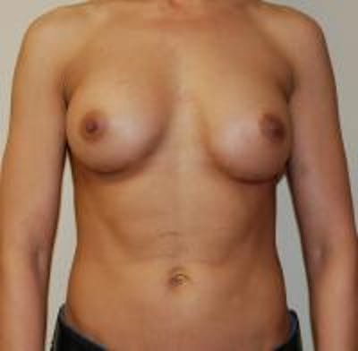 Breast Augmentation Gallery - Patient 22391254 - Image 2