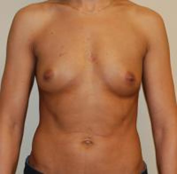 Breast Augmentation Gallery - Patient 22391254 - Image 1