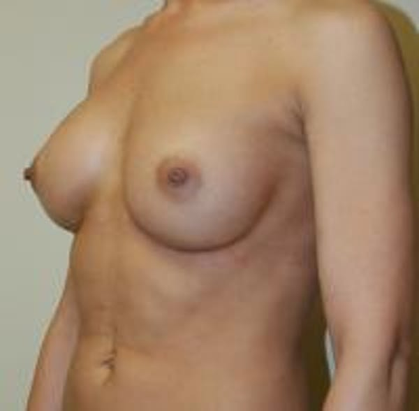 Breast Augmentation Gallery - Patient 22391254 - Image 4