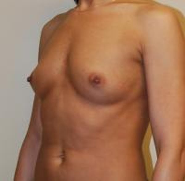 Breast Augmentation Gallery - Patient 22391254 - Image 3