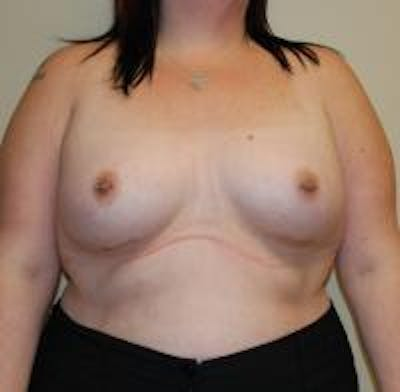 Breast Augmentation Gallery - Patient 22391255 - Image 2