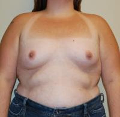 Breast Augmentation Gallery - Patient 22391255 - Image 1