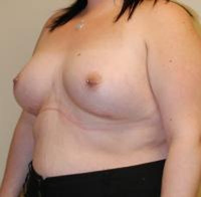 Breast Augmentation Gallery - Patient 22391255 - Image 4