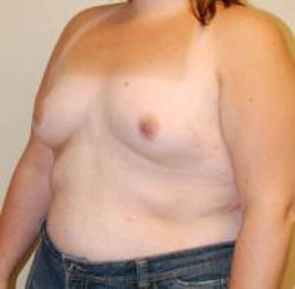 Breast Augmentation Gallery - Patient 22391255 - Image 3