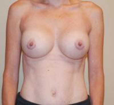 Breast Augmentation Gallery - Patient 22391256 - Image 2