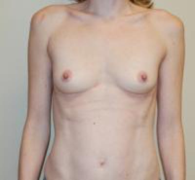 Breast Augmentation Gallery - Patient 22391256 - Image 1