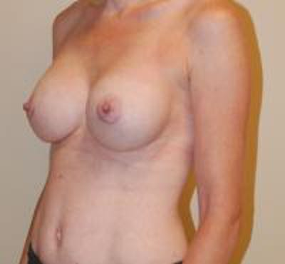 Breast Augmentation Gallery - Patient 22391256 - Image 4