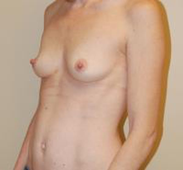 Breast Augmentation Gallery - Patient 22391256 - Image 3