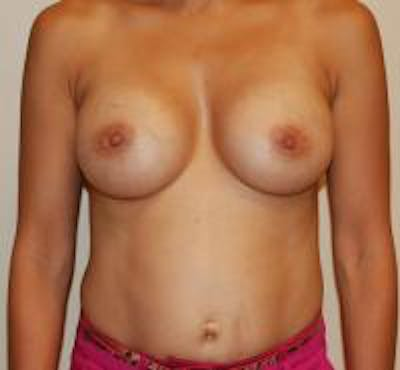 Breast Augmentation Gallery - Patient 22391257 - Image 2