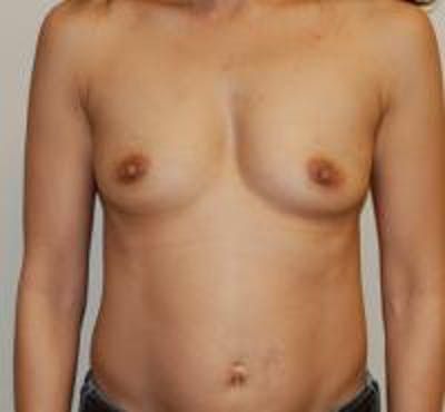 Breast Augmentation Gallery - Patient 22391257 - Image 1