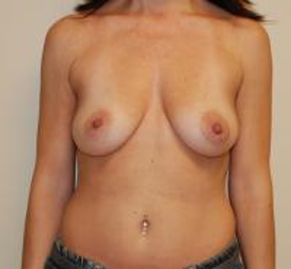 Breast Augmentation Gallery - Patient 22391258 - Image 1