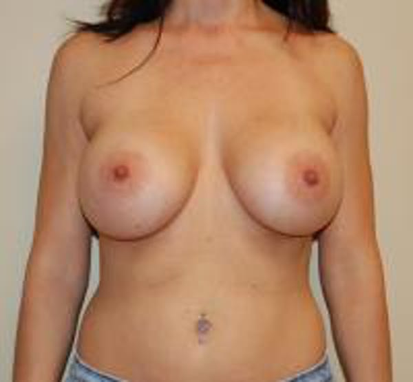 Breast Augmentation Gallery - Patient 22391258 - Image 2