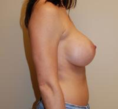 Breast Augmentation Gallery - Patient 22391258 - Image 4