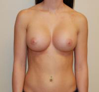 Breast Augmentation Gallery - Patient 22391259 - Image 2