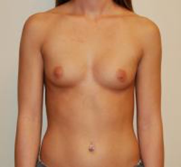 Breast Augmentation Gallery - Patient 22391259 - Image 1