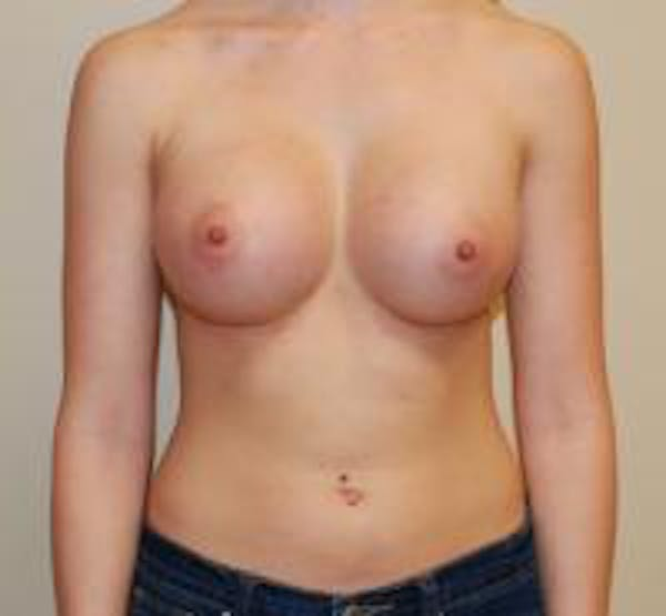 Breast Augmentation Gallery - Patient 22391260 - Image 2