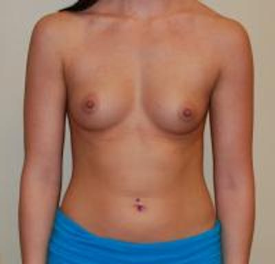 Breast Augmentation Gallery - Patient 22391260 - Image 1