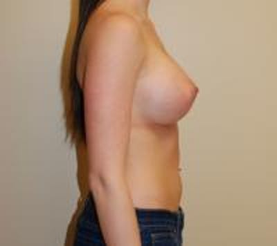 Breast Augmentation Gallery - Patient 22391260 - Image 4