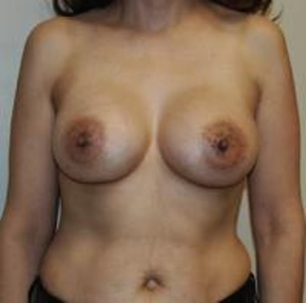 Breast Augmentation Gallery - Patient 22391261 - Image 2
